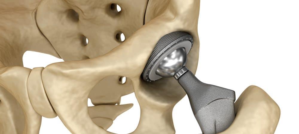 Vidro pode substituir material para realizar implantes